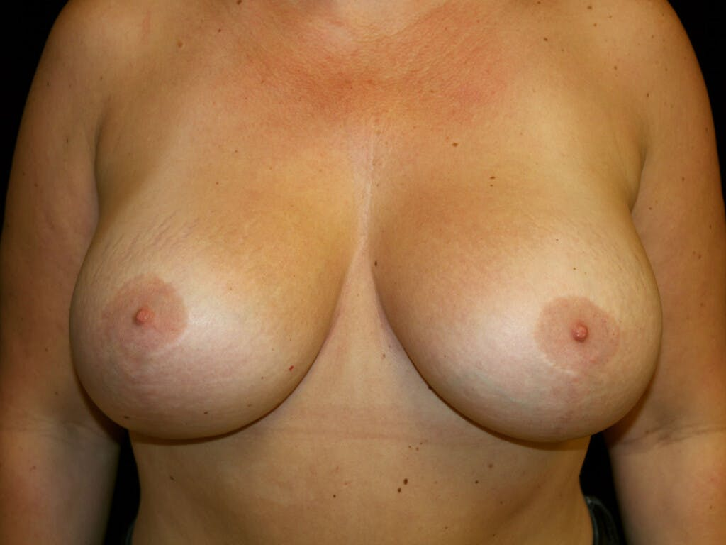 Vertical and Inverted T Breast Lift Gallery - Patient 39235631 - Image 2