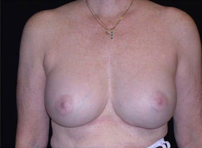 Revision Breast Surgery Gallery - Patient 39235622 - Image 2