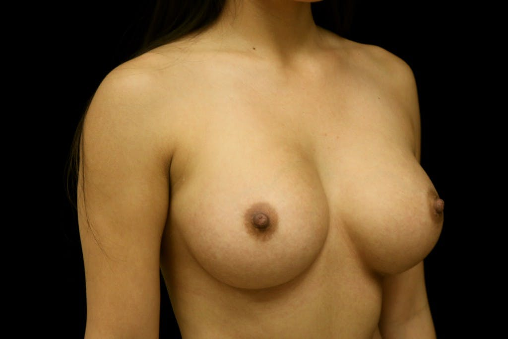 Breast Augmentation Gallery - Patient 39235623 - Image 4