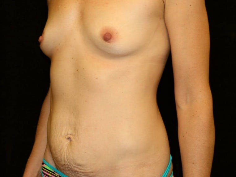 Tummy Tuck Gallery - Patient 39235625 - Image 7