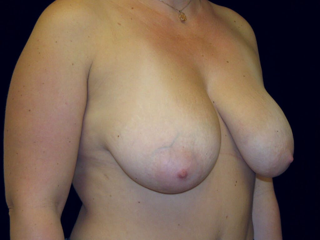 Vertical and Inverted T Breast Lift Gallery - Patient 39235631 - Image 3