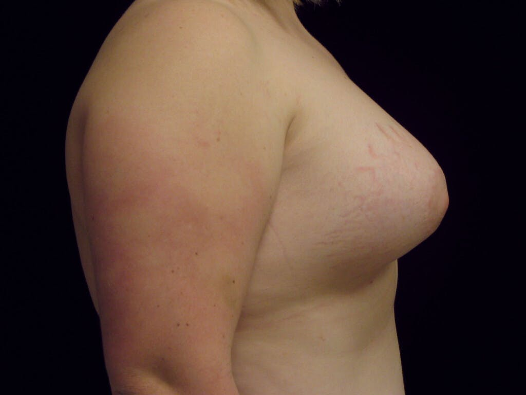 Peri-areolar Breast Lift Gallery - Patient 39235627 - Image 6