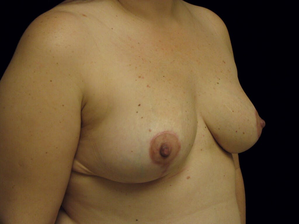 Breast Reduction T Incision Gallery - Patient 39235628 - Image 4