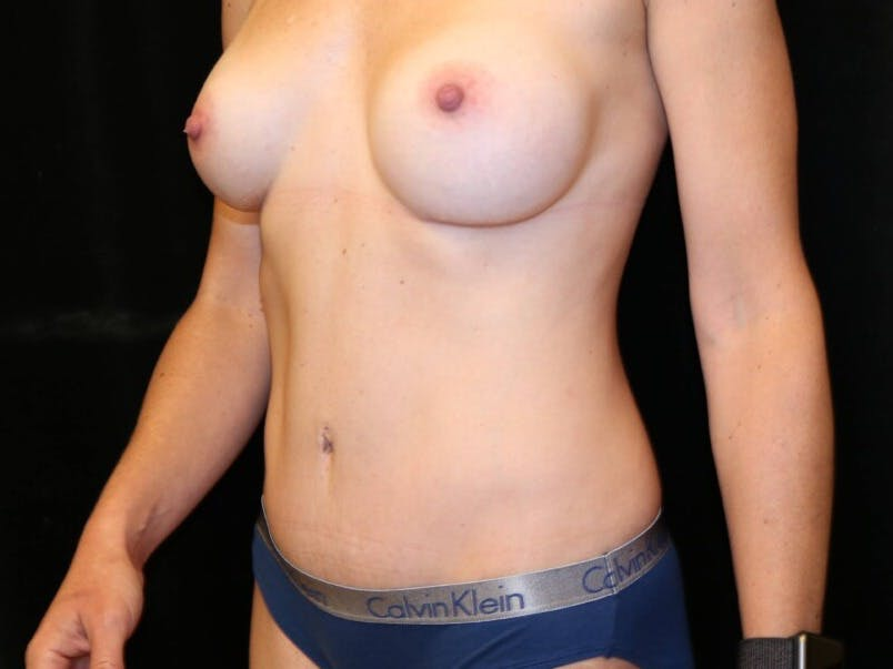 Tummy Tuck Gallery - Patient 39235625 - Image 8