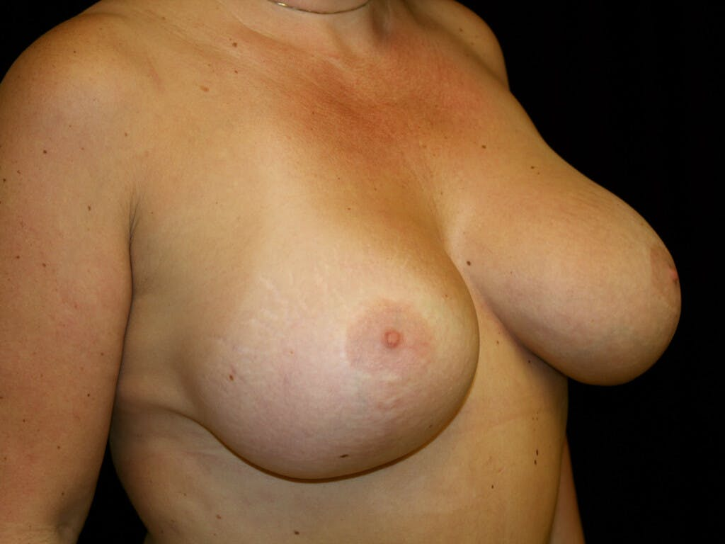 Vertical and Inverted T Breast Lift Gallery - Patient 39235631 - Image 4