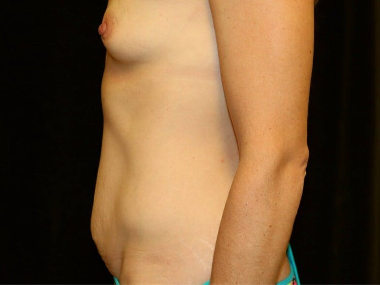 Tummy Tuck Gallery - Patient 39235625 - Image 9