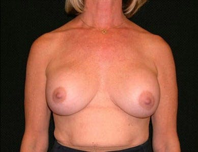 Revision Breast Surgery Gallery - Patient 39235624 - Image 1