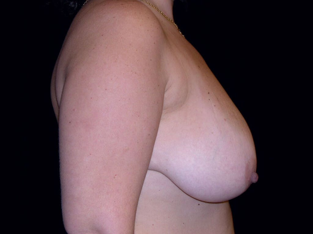 Breast Reduction T Incision Gallery - Patient 39235628 - Image 5