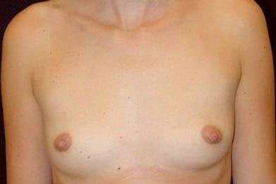 Breast Augmentation Gallery - Patient 39235626 - Image 1