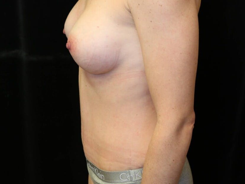 Tummy Tuck Gallery - Patient 39235625 - Image 10