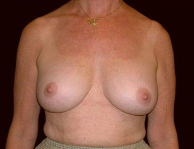 Revision Breast Surgery Gallery - Patient 39235624 - Image 2