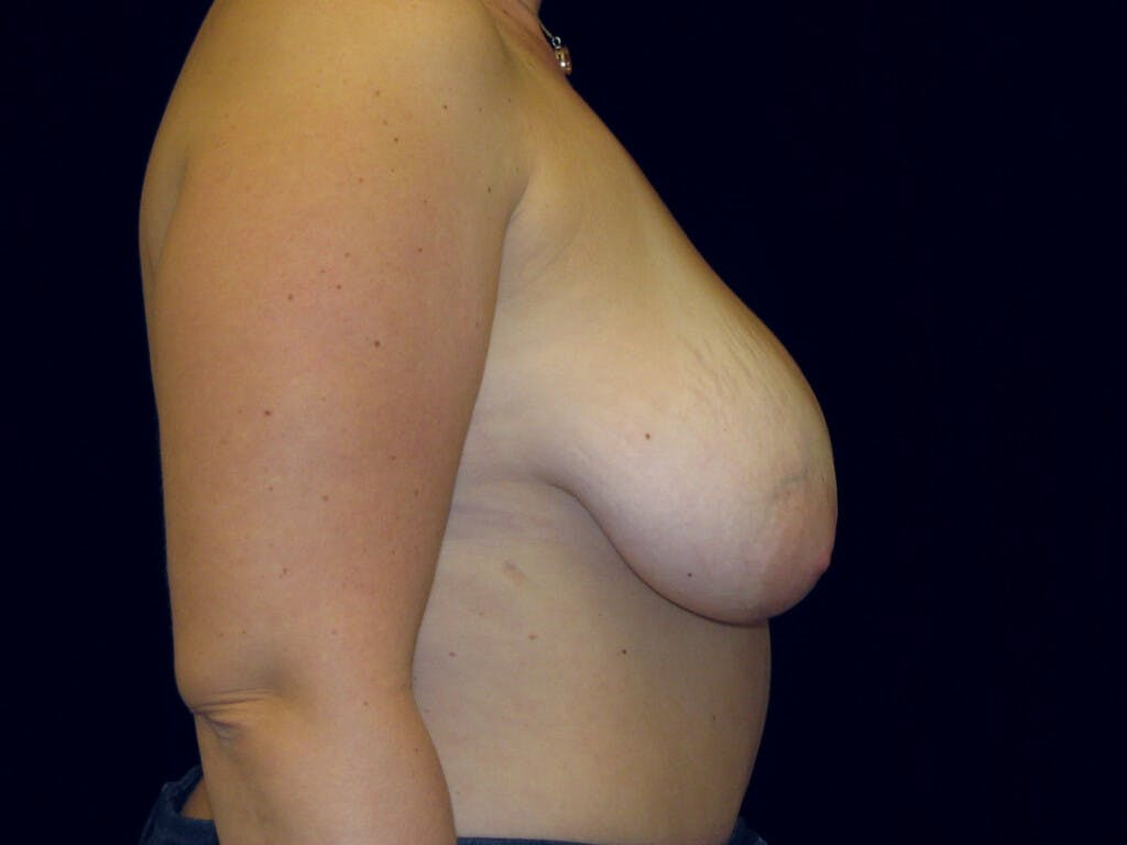 Vertical and Inverted T Breast Lift Gallery - Patient 39235631 - Image 5
