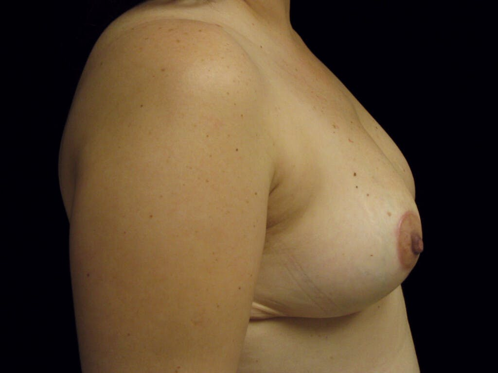 Breast Reduction T Incision Gallery - Patient 39235628 - Image 6