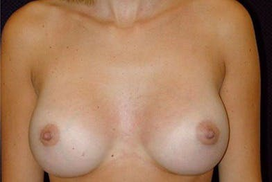 Breast Augmentation Gallery - Patient 39235626 - Image 2