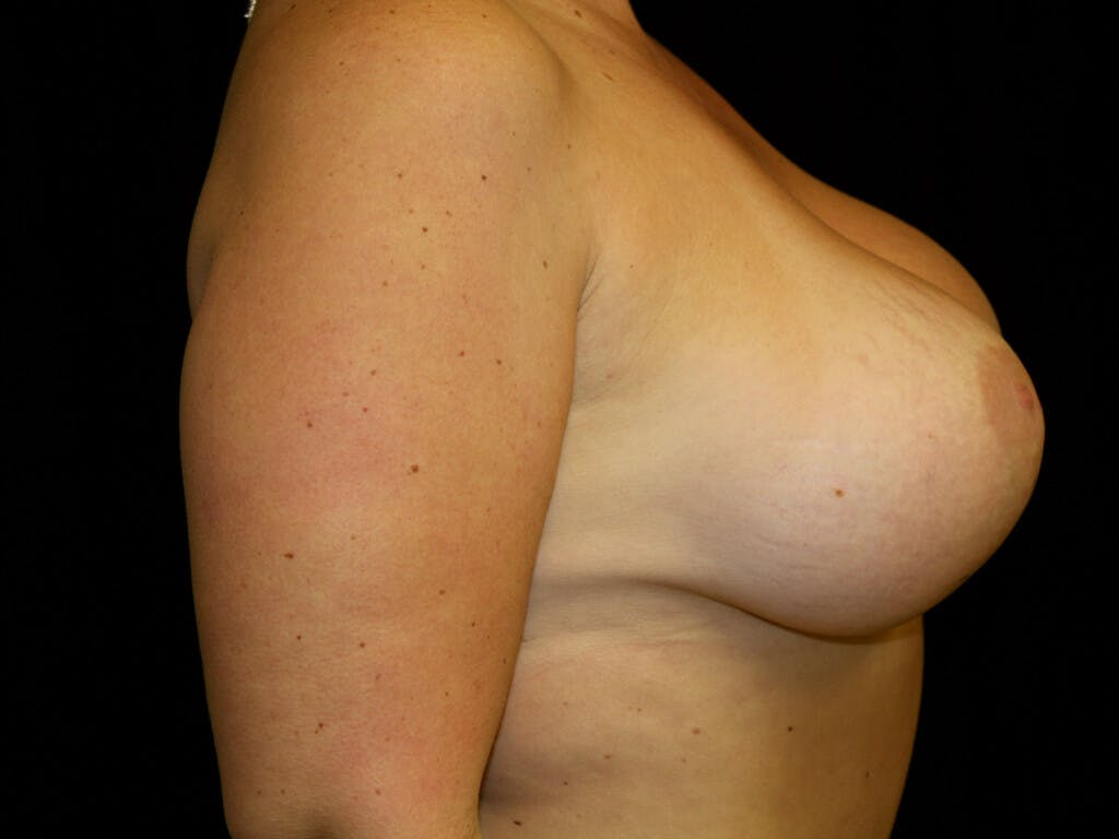 Vertical and Inverted T Breast Lift Gallery - Patient 39235631 - Image 6