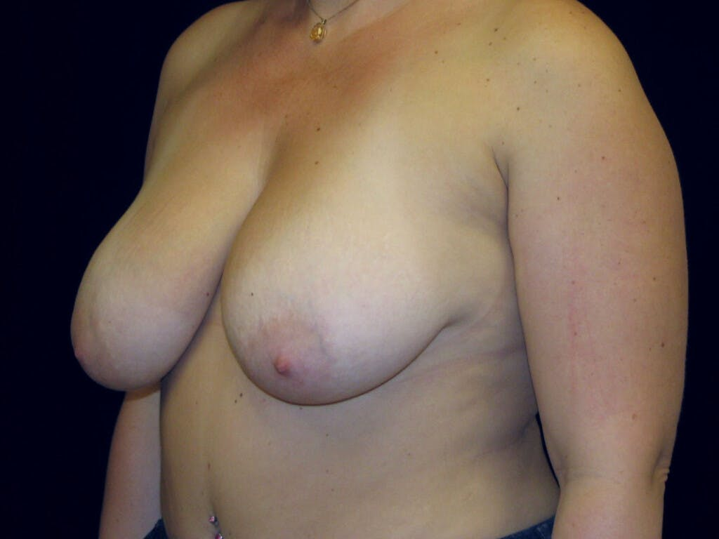 Vertical and Inverted T Breast Lift Gallery - Patient 39235631 - Image 7