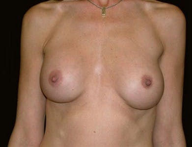 Revision Breast Surgery Gallery - Patient 39235629 - Image 1