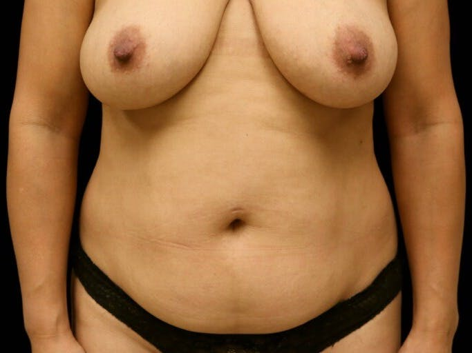Tummy Tuck Gallery - Patient 39235637 - Image 1