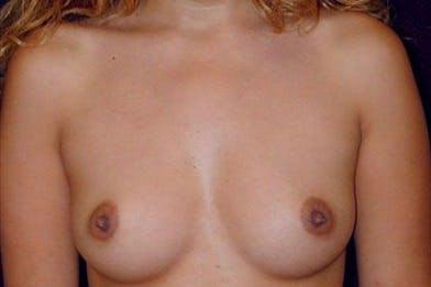 Breast Augmentation Gallery - Patient 39235630 - Image 1