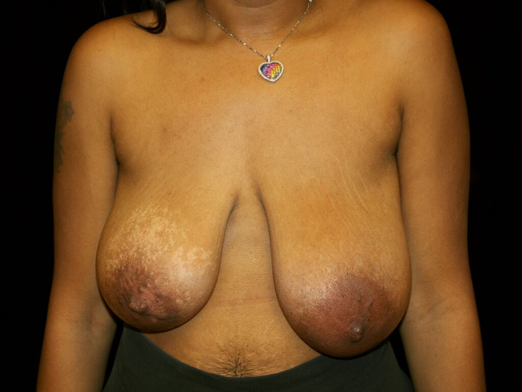 Breast Reduction T Incision Gallery - Patient 39235636 - Image 1