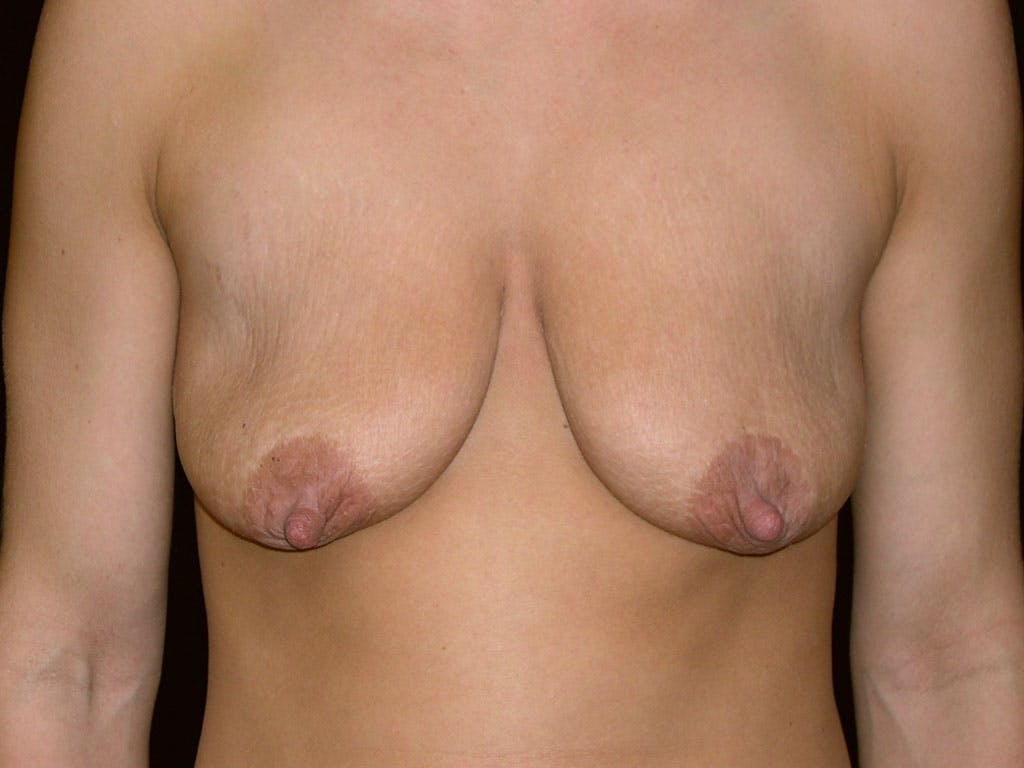 Peri-areolar Breast Lift Gallery - Patient 39235638 - Image 1