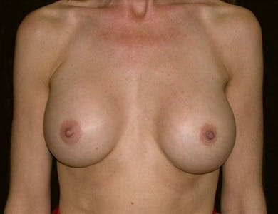 Revision Breast Surgery Gallery - Patient 39235629 - Image 2