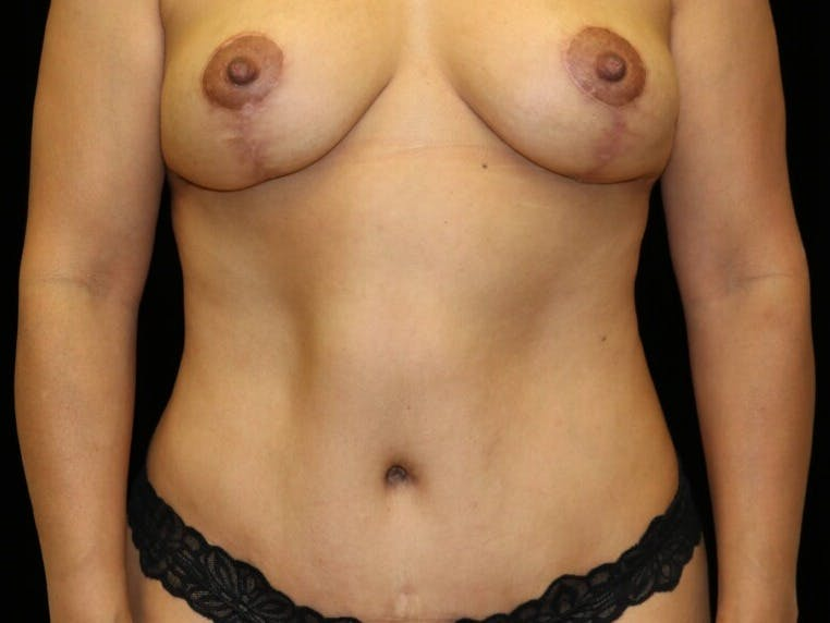 Tummy Tuck Gallery - Patient 39235637 - Image 2