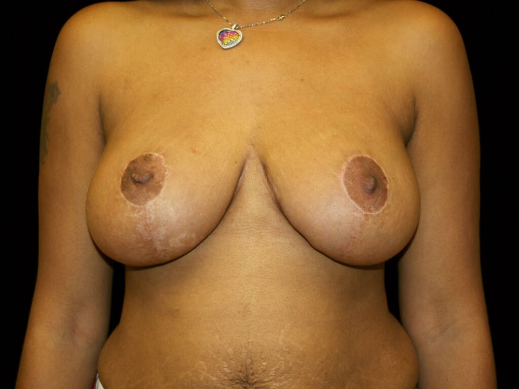 Breast Reduction T Incision Gallery - Patient 39235636 - Image 2