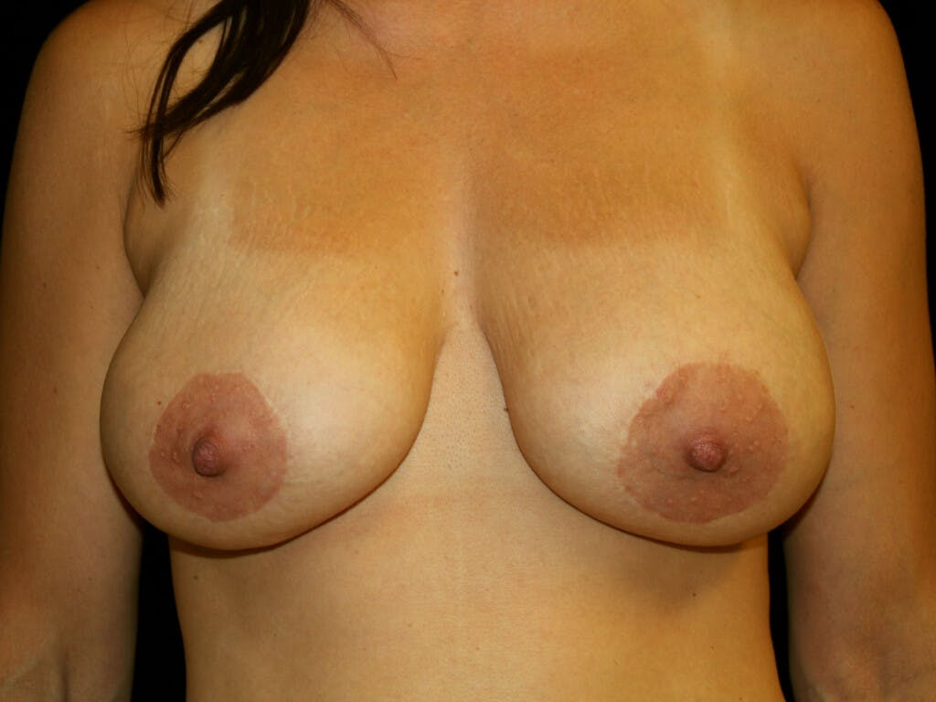 Peri-areolar Breast Lift Gallery - Patient 39235638 - Image 2