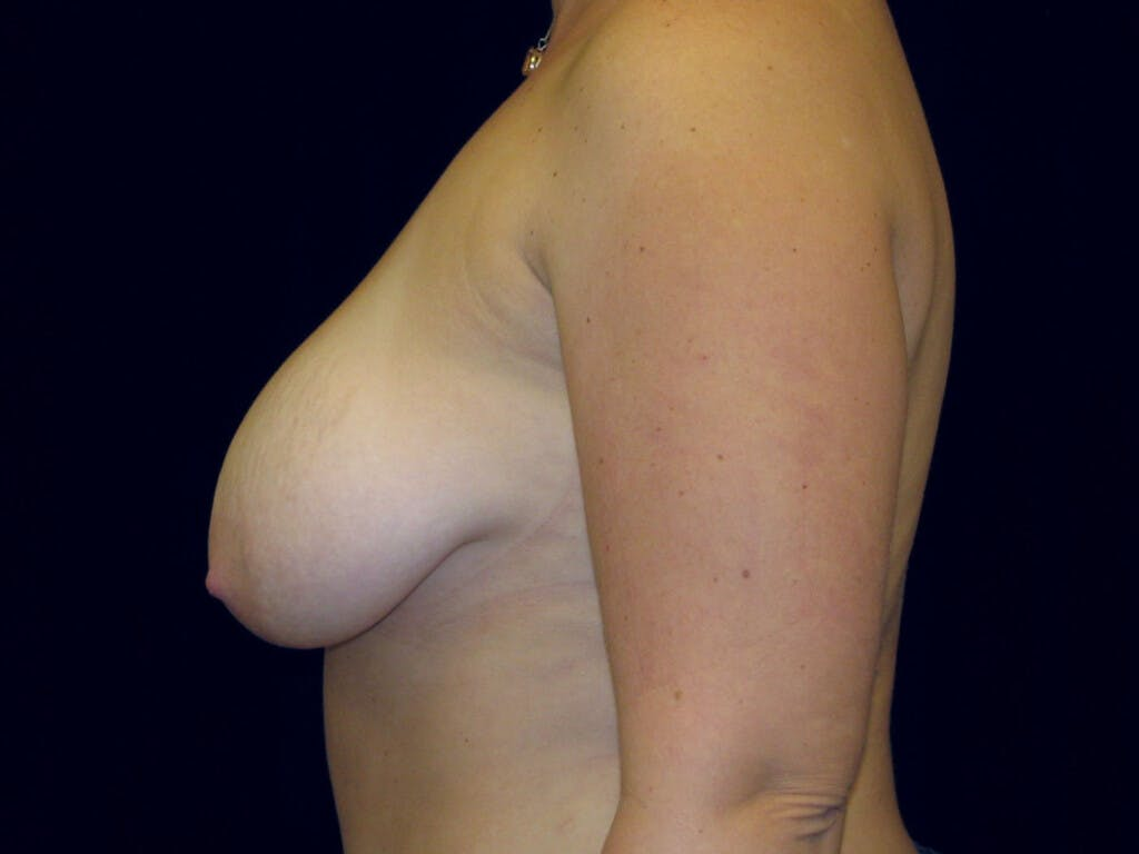 Vertical and Inverted T Breast Lift Gallery - Patient 39235631 - Image 9