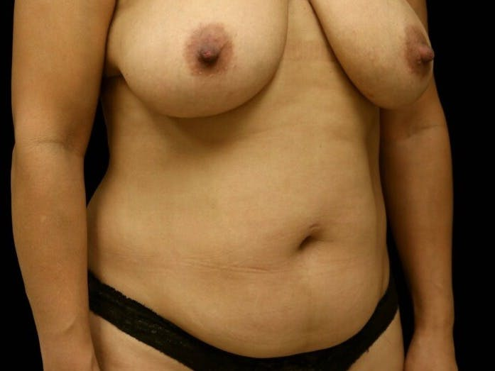 Tummy Tuck Gallery - Patient 39235637 - Image 3
