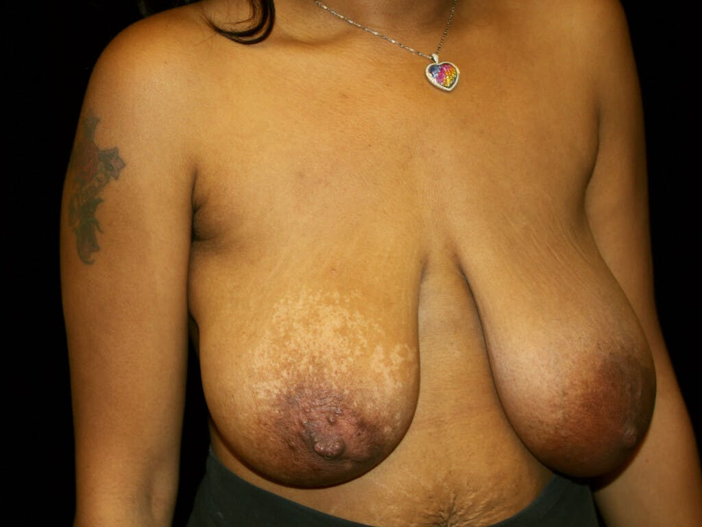 Breast Reduction T Incision Gallery - Patient 39235636 - Image 3