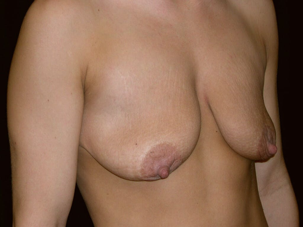 Peri-areolar Breast Lift Gallery - Patient 39235638 - Image 3