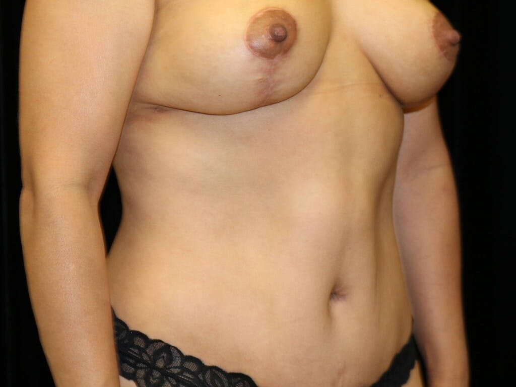 Tummy Tuck Gallery - Patient 39235637 - Image 4