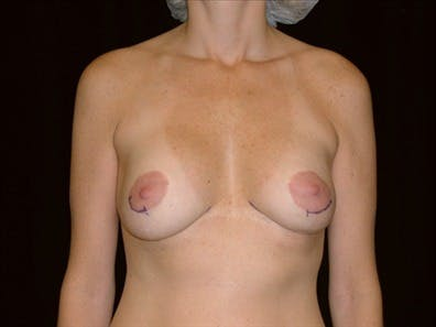 Revision Breast Surgery Gallery - Patient 39235632 - Image 1