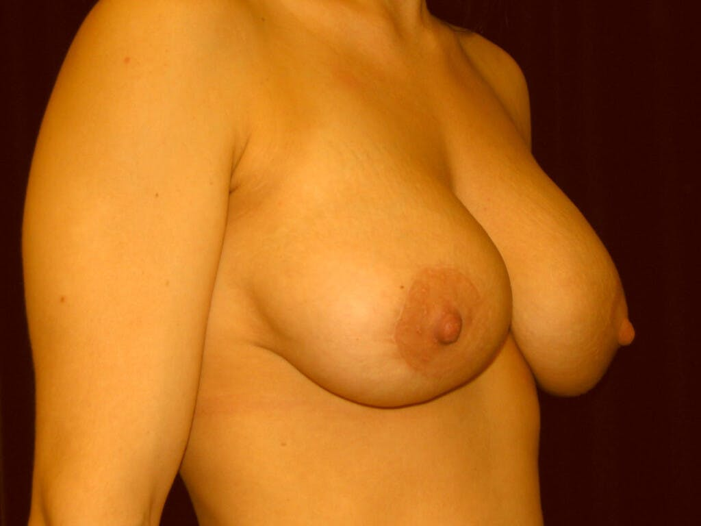 Peri-areolar Breast Lift Gallery - Patient 39235638 - Image 4