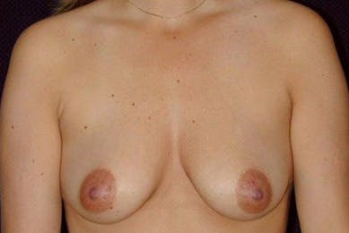 Breast Augmentation Gallery - Patient 39235633 - Image 1