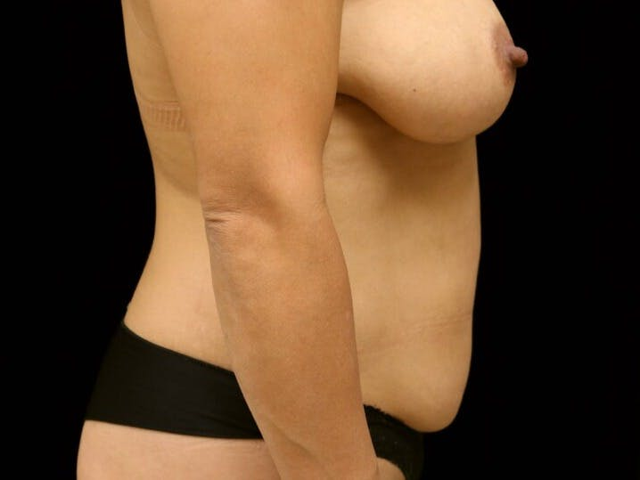 Tummy Tuck Gallery - Patient 39235637 - Image 5