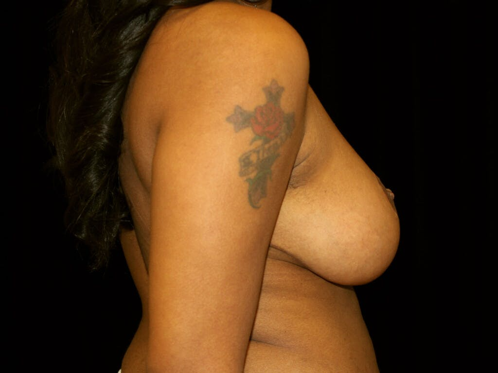 Breast Reduction T Incision Gallery - Patient 39235636 - Image 4