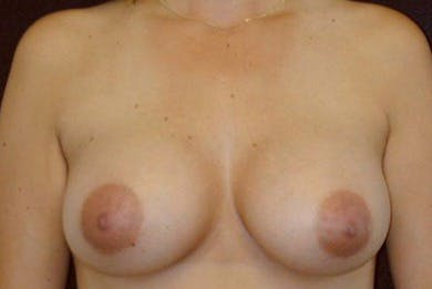 Breast Augmentation Gallery - Patient 39235633 - Image 2