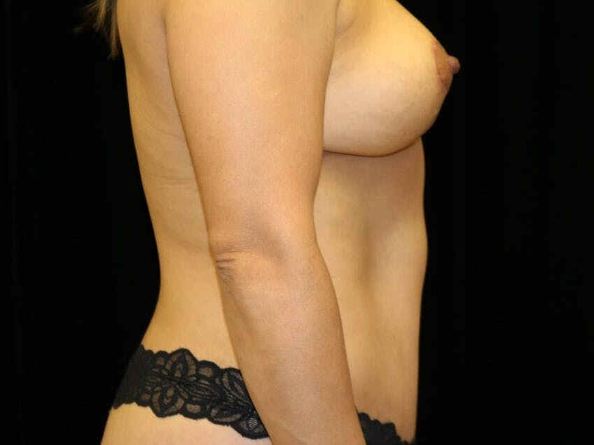 Tummy Tuck Gallery - Patient 39235637 - Image 6