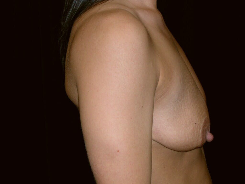 Peri-areolar Breast Lift Gallery - Patient 39235638 - Image 5