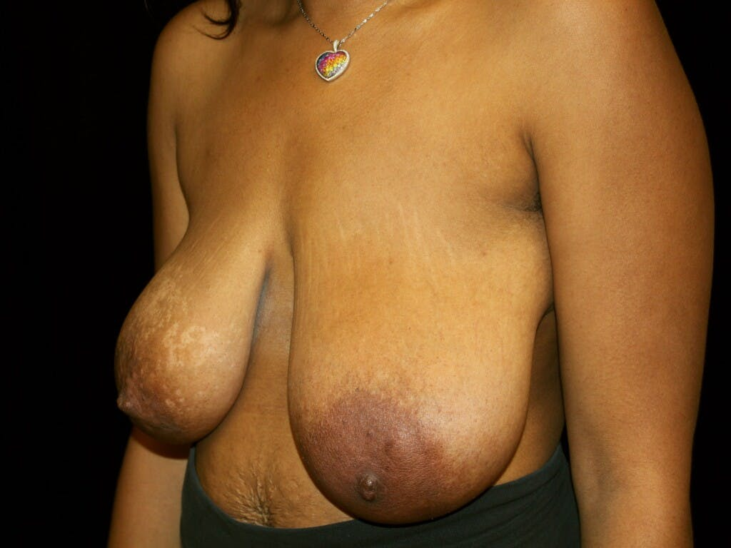 Breast Reduction T Incision Gallery - Patient 39235636 - Image 5