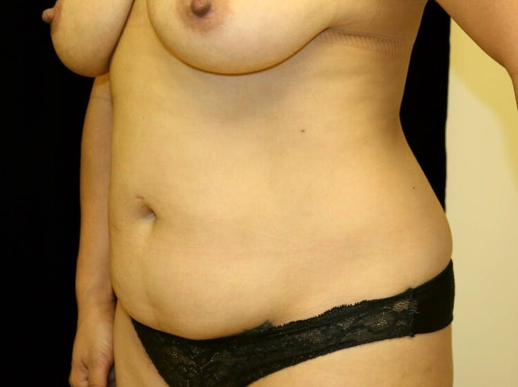 Tummy Tuck Gallery - Patient 39235637 - Image 7