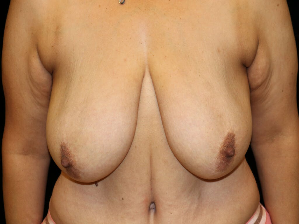 Vertical and Inverted T Breast Lift Gallery - Patient 39244064 - Image 1