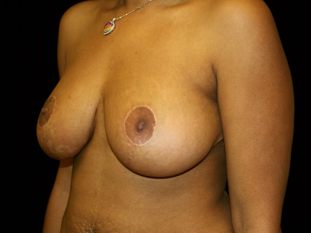 Breast Reduction T Incision Gallery - Patient 39235636 - Image 6