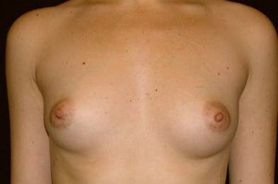 Breast Augmentation Gallery - Patient 39235635 - Image 1