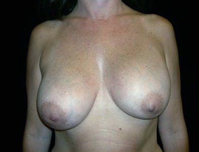Revision Breast Surgery Gallery - Patient 39235634 - Image 1