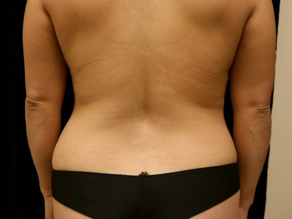 Tummy Tuck Gallery - Patient 39235637 - Image 9