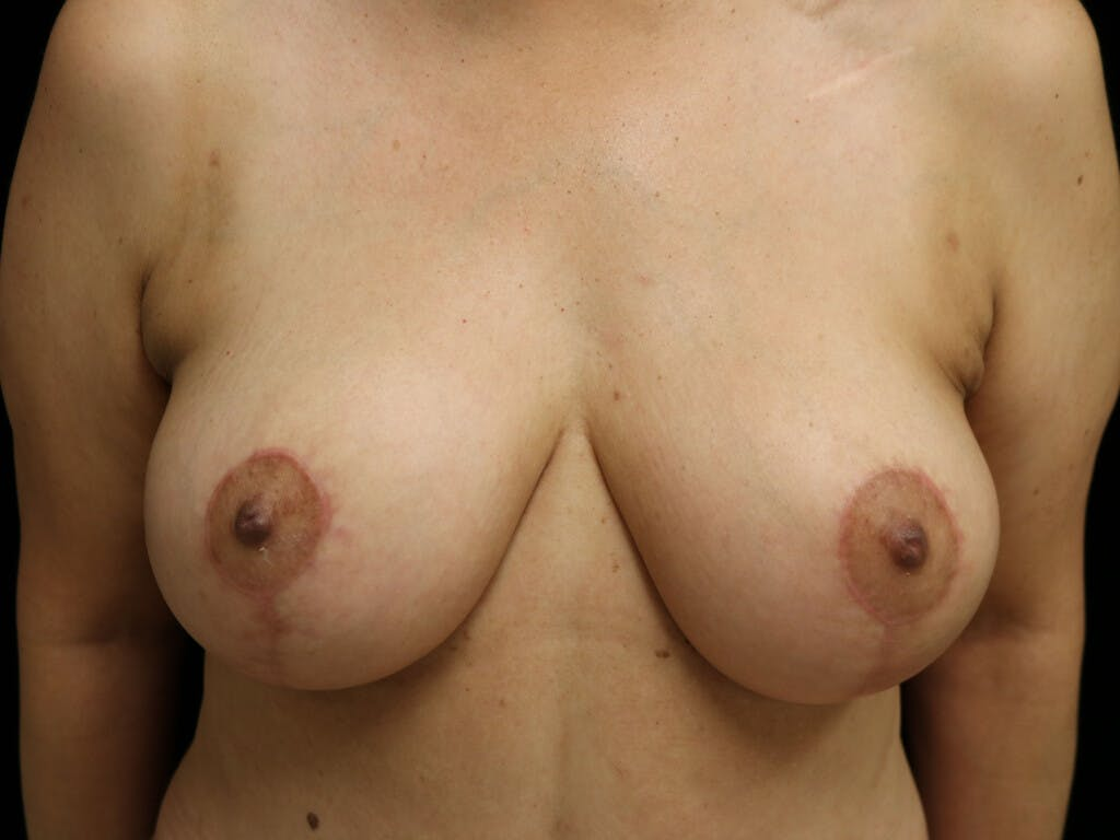 Vertical and Inverted T Breast Lift Gallery - Patient 39244064 - Image 2